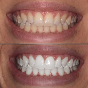 Teeth Whitening celina tx open late dentistry Dr. Rouse