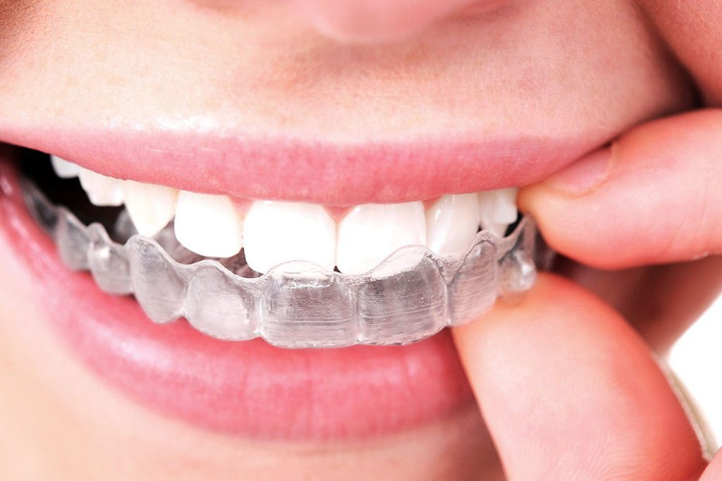 Sedation-Dentistrys