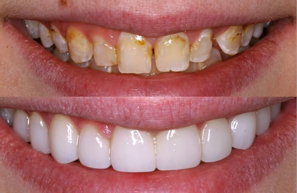 Veneers Prosper Celina TX Open Late Dentistry and Orthodontics Celina TX