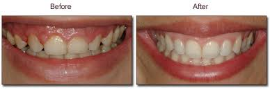 Gum Contouring Celina TX Dr. Rouse