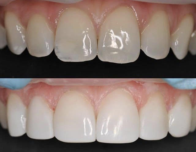 Bonding Cosmetic Dentistry Celina TX Dentist Dr. Rouse