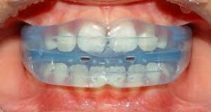 Holistic Orthodontic Tongue Trainer Myofunctional Therapy celina tx texas dr rouse open late dentistry and orthodontics
