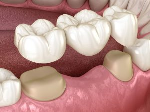 tooth replacement life like dental bridge celina tx dr rouse open late dentistry