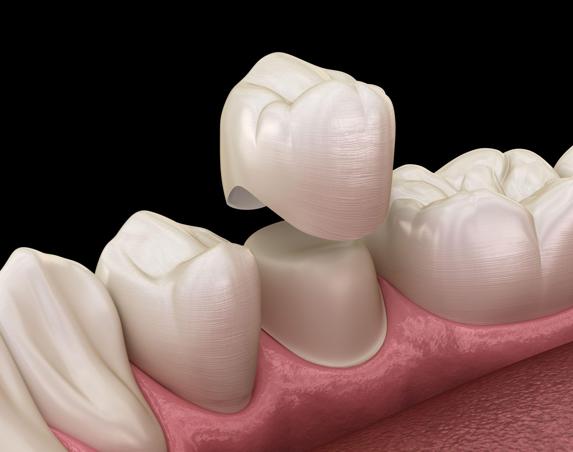 dentist celina prosper texas tx custom natural-looking dental crown all-porcelain strong