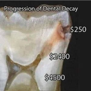 Affordable Tooth Colored Fillings Celina Texas Tx Dr Rouse