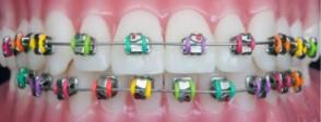 Celina Texas Metal Bracket Traditional Braces Dentist Dr Rouse