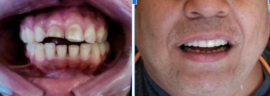 Dental Crowns Before Celina Tx Dr Rouse Custom Natural