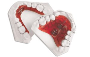 Phase 1 Appliance Example Dr Rouse Celina Tx Dentist