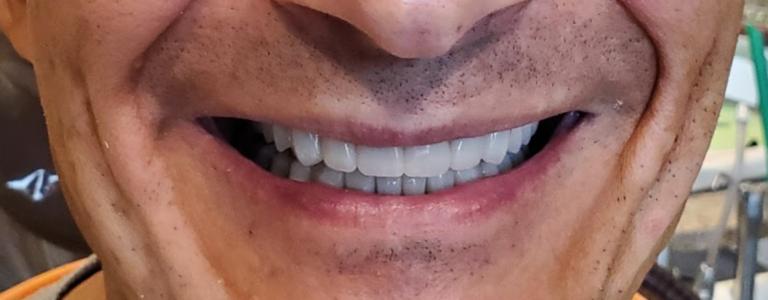 Smile Makeover Celina Tx Dentist All Porcelain