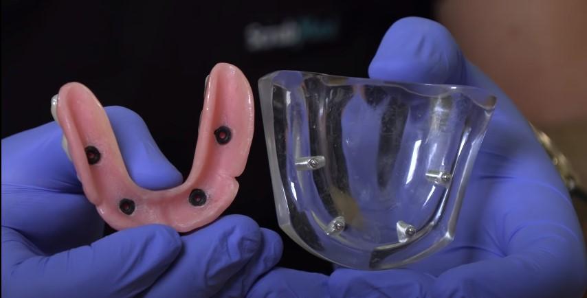 Slipping Sliding Denture Replacement Clip In Celina Tx Dr Rouse Prosper Gunter