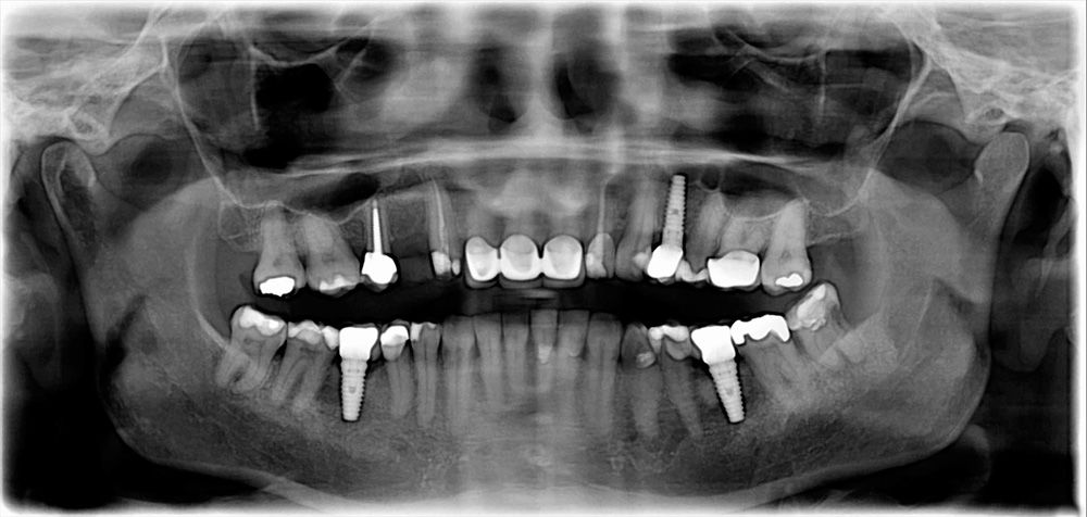 Traditional Panoramic Xray Celina Tx Dr Rouse