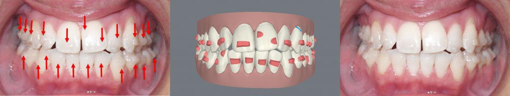 Attachments Celina Prosper Tx Open Late Orthodontics Dr Rouse