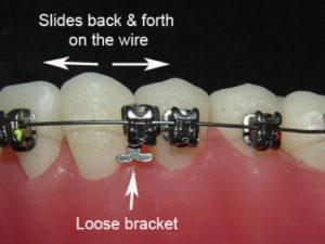 Broken Bracket Celina Prosper Tx Open Late Orthodontics Dr Rouse