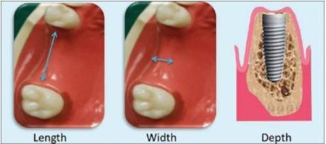 Celina Tx Dental Bone Grafting For Implants Dr Rouse Jpg