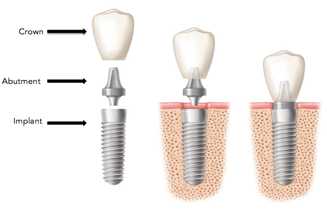 Dental Implant Abutment Crown Celina Tx Dr Rouse Open Late Dentistry And Orthodontics