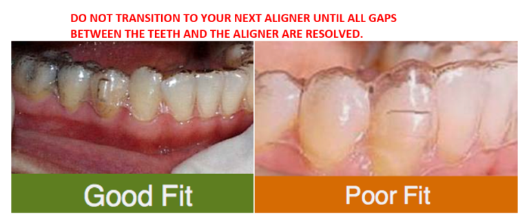 Dr Rouse Open Late Dentistry Orthodontics Clear Trays Aligners Celina Tx
