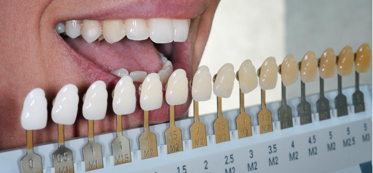Kor Night Whitening Dr Rouse Celina Prosper Teeth Whitening Open Late Dentistry And Orthodontics