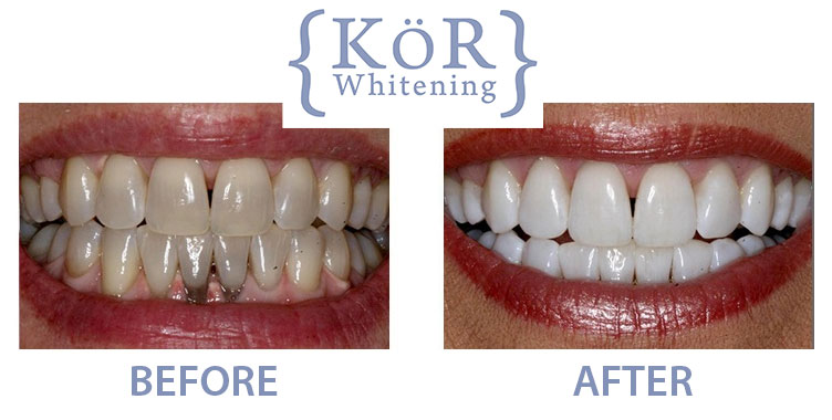 Kor Whitening Dr Rouse Celina Prosper Teeth Whitening Open Late Dentistry And Orthodontics