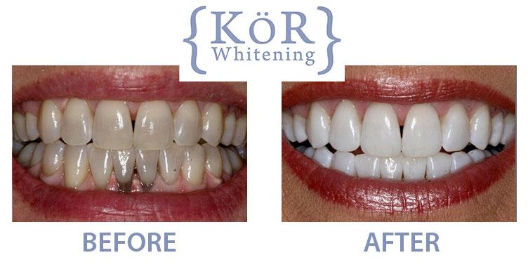 Kor Whitening Dr Rouse Celina Prosper Teeth Whitening Open Late Dentistry And Orthodontics