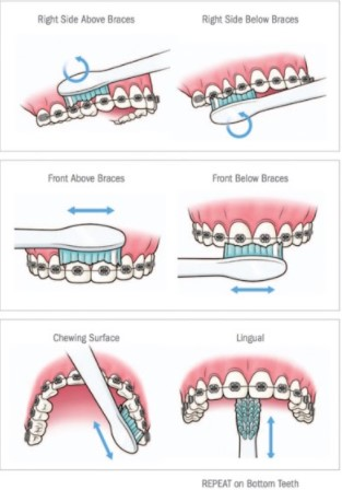 Oral Hygiene With Braces Dr Rouse Celina Prosper Tx Open Late Orthodontics