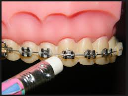 Poking Wire Celina Prosper Tx Open Late Orthodontics Dr Rouse