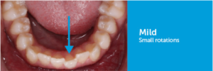 small rotations celina tx dr rouse open late orthodontics