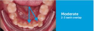 medium rotations celina tx dr rouse open late orthodontics