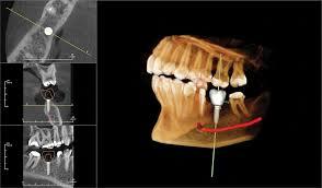 3d Cbct Imaging Celina Prosper Open Late Dentistry And Orthodontics Dr Rouse