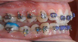 Bite Turbos Back Teeth Orthodontics Dr Rouse Open Late Dentistry Prosper Celina Frisco Mckinney