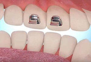 Bite Turbos Front Teeth Orthodontics Dr Rouse Open Late Dentistry Prosper Celina Frisco Mckinney