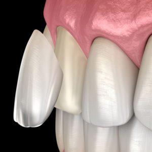 Celina Prosper Tx Open Late Dentistry And Orthodontics Dr Rouse Dental Veneers Smile Makeover