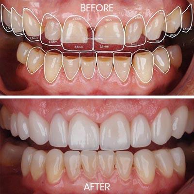 Emax Strength Pressed Veneers Dr Rouse Open Late Dentistry Dental Porcelain Veneers Prosper Celina Frisco Mckinney