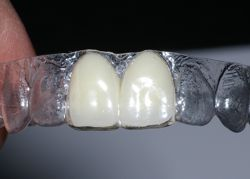 Essix Retainer Dental Implants Dr Rouse Celina Prosper Open Late Dentistry And Orthodontics