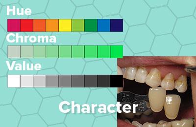 Hue Value Chroma Dr Rouse Open Late Dentistry Dental Porcelain Veneers Prosper Celina Frisco Mckinney