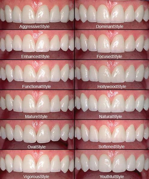 Lvi Smile Guide Dr Rouse Open Late Dentistry Dental Porcelain Veneers Prosper Celina Frisco Mckinney