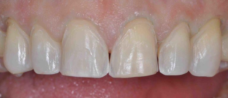 Minimal Preparations Open Late Dentistry Dental Porcelain Veneers Prosper Celina Frisco Mckinney