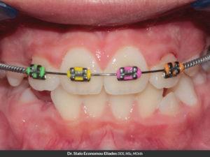 Phase 1 Open Coil Spring Orthodontics Dr Rouse Open Late Dentistry Prosper Celina Frisco Mckinney