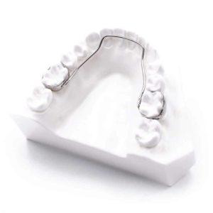Phase 1 Permanent Retainers Orthodontics Dr Rouse Open Late Dentistry Prosper Celina Frisco Mckinney