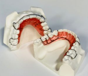 Phase 1 Removable Retainers Orthodontics Dr Rouse Open Late Dentistry Prosper Celina Frisco Mckinney