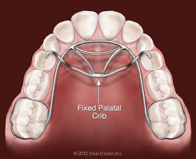 Phase 1 Thumb Sucking Appliance Orthodontics Dr Rouse Open Late Dentistry Prosper Celina Frisco Mckinney