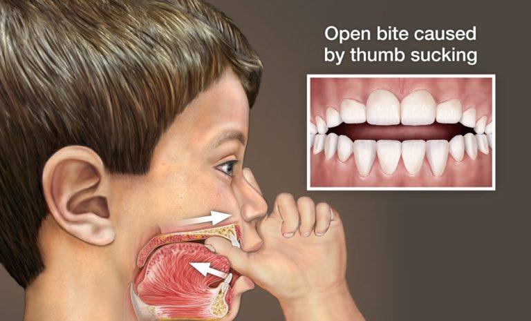 Phase 1 Thumb Sucking Orthodontics Dr Rouse Open Late Dentistry Prosper Celina Frisco Mckinney