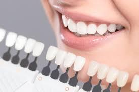 Shade Guide Dr Rouse Open Late Dentistry Dental Porcelain Veneers Prosper Celina Frisco Mckinney