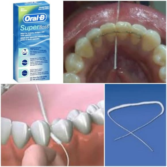 Temporary Veneers Home Care Superfloss Celina Prosper Open Late Dentistry And Orthodontics Dr Rouse