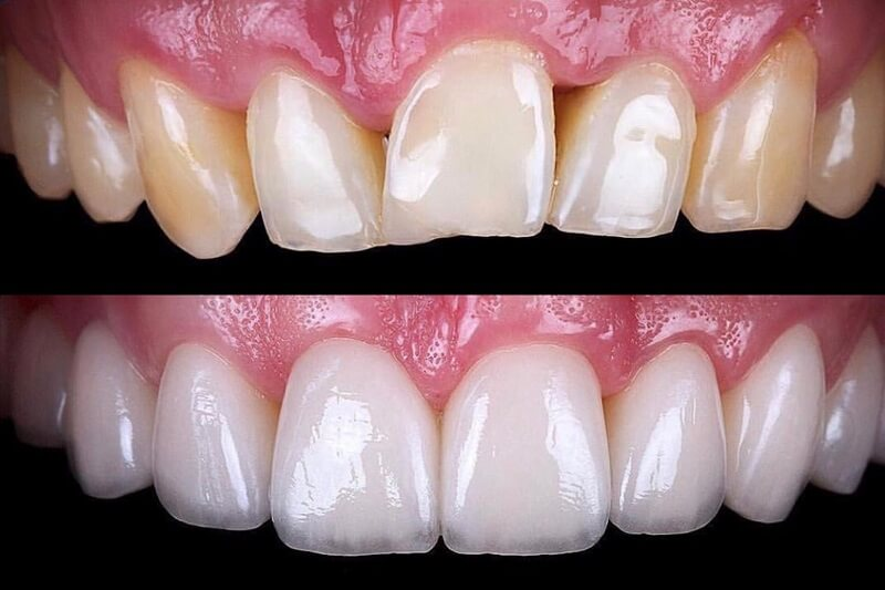Translucency Dr Rouse Open Late Dentistry Dental Porcelain Veneers Prosper Celina Frisco Mckinney