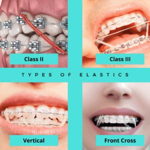 Types Of Elastics Celina Prosper Open Late Orthodontics Dr Rouse