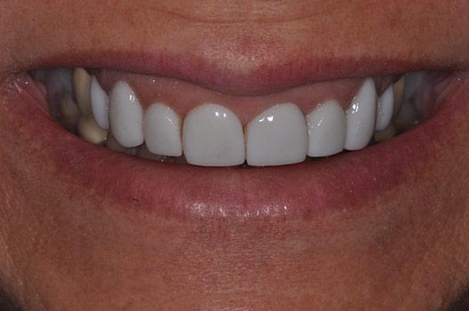 Veneer Midline Dr Rouse Open Late Dentistry Dental Porcelain Veneers Prosper Celina Frisco Mckinney