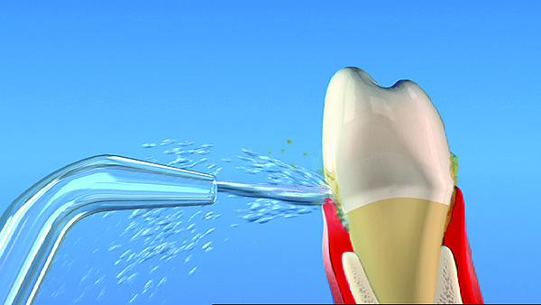 Waterpik Dental Implants Dr Rouse Open Late Dentistry Prosper Celina Frisco Mckinney