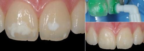 White Spot Decalcifications Orthodontics Dr Rouse Open Late Dentistry Prosper Celina Frisco Mckinney