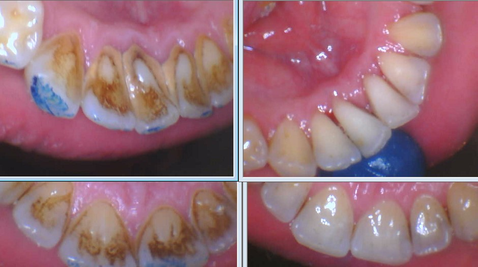 Deep Cleaning Prosper Celina TX Texas Dr Rouse Open Late Dentistry and Orthodontics