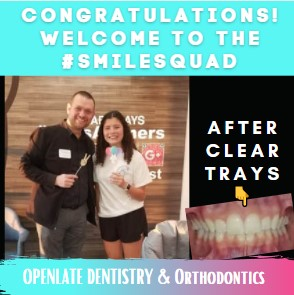 Clear Orthodontic Trays Celina TX Dr Rouse Open Late Dentist and Orthodontist Orthodontics